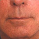 Lip Augmentation Case Study