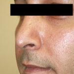 Rhinoplasty Case Study