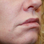 Skincare, Botox and Fillers Case Study