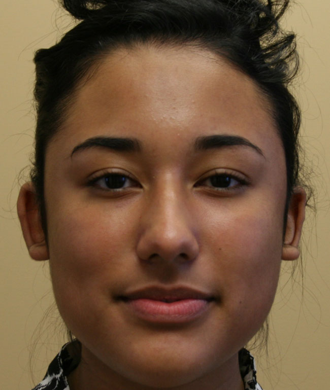 Otoplasty Case Study - Before