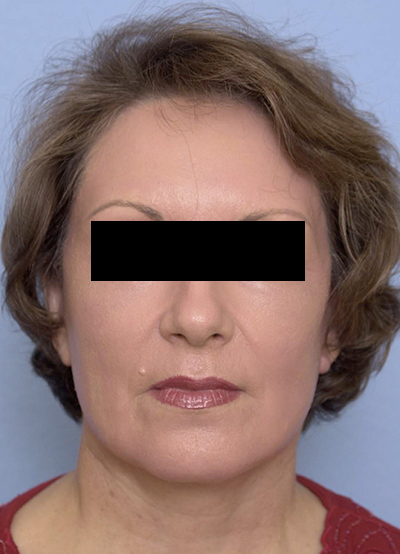Face lift, Brow lift, CO2 laser after