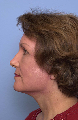 Face, Neck, Brow Lift and Co2 Laser Case Study After