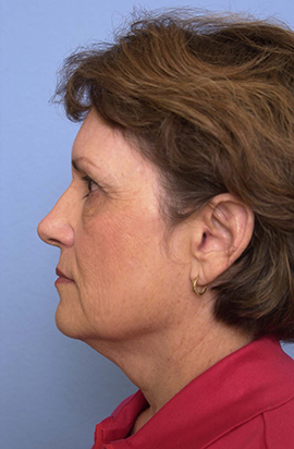 Face, Neck, Brow Lift and Co2 Laser Case Study Before