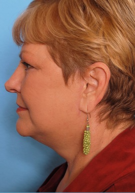 Face and Neck Lift Case Study After