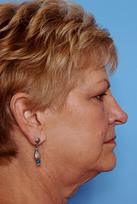 Face and Neck Lift Case Study Before