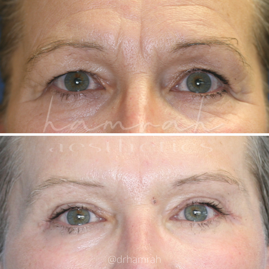 Lateral Browlift, Upper Blepharoplasty, and CO2 Laser