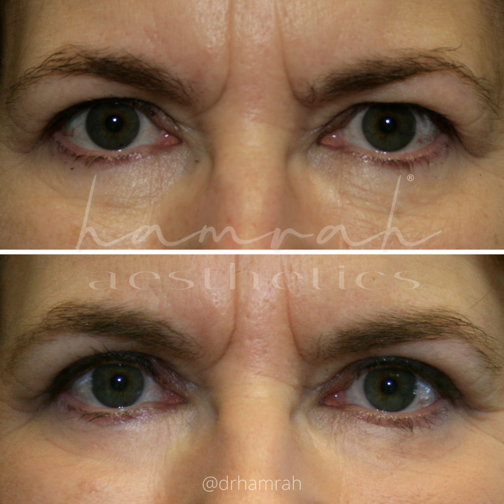 Lateral Browlift and Upper Blepharoplasty - Front