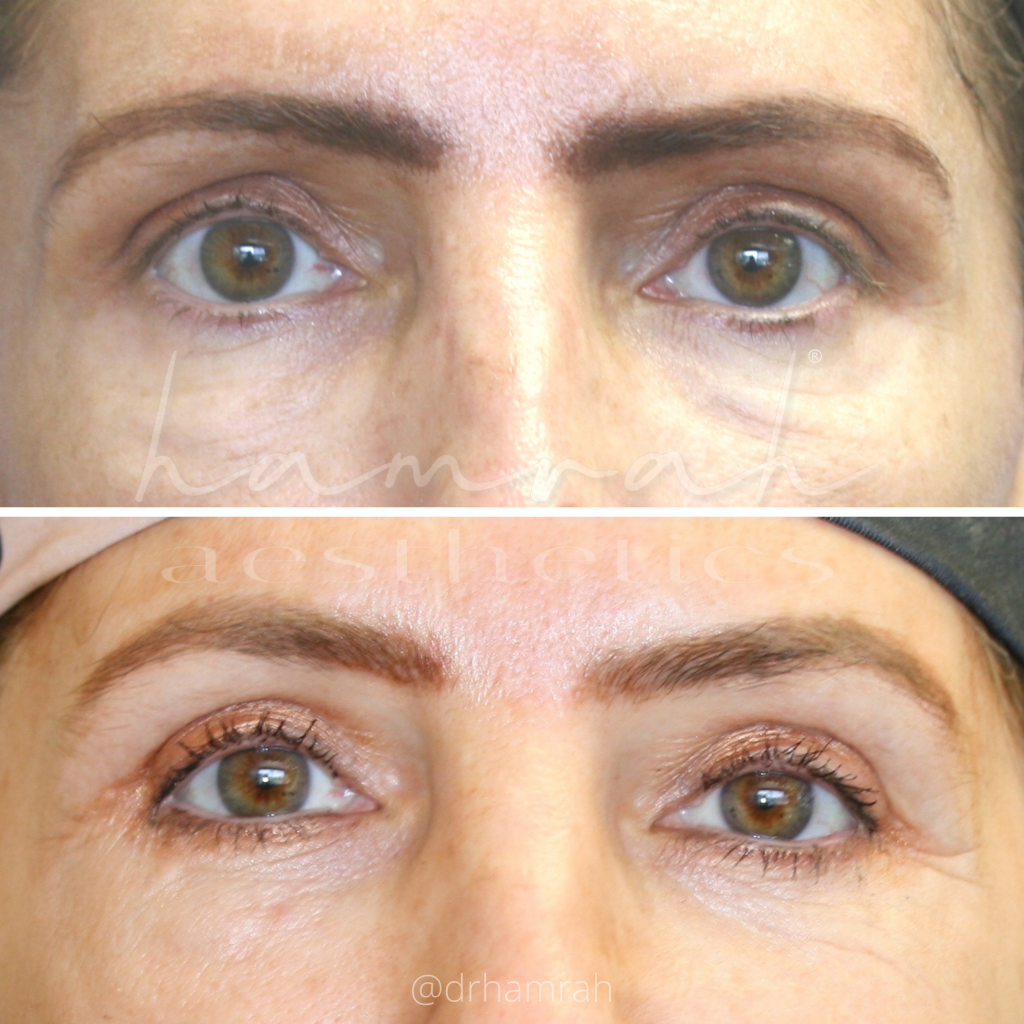 Patient 2 - Lower Blepharoplasty and SOOF Lift - Front